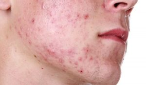 Acne due to hard water
