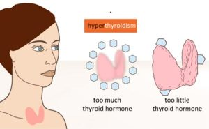 Thyroid disorder due to fluoride